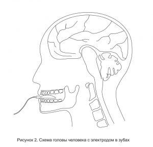 Схема головы человека с электродом нейропорт в зубах