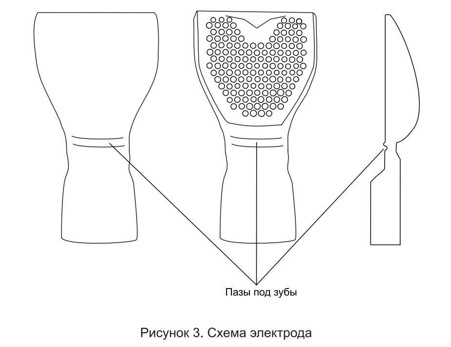 Схема Электрода Нейпрорт